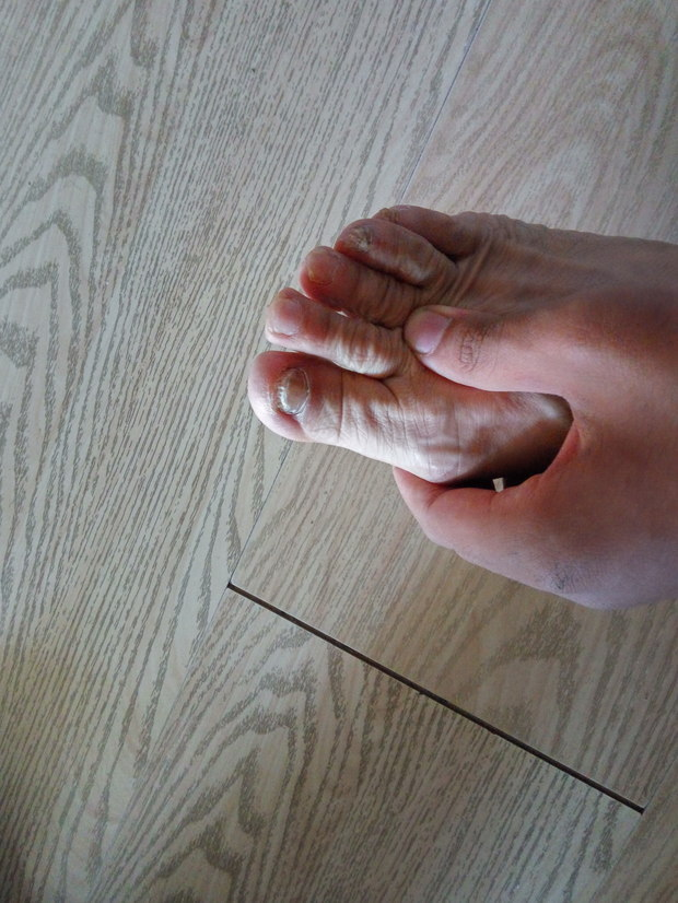 灰指甲用啥药好_这是灰指甲吗_360问答